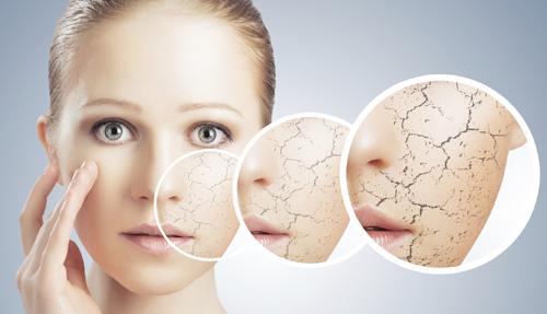 Суха и дехидратирана кожа